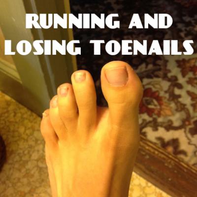 Running and Losing Toenails