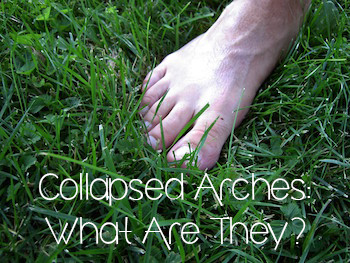 Collapsed Arches: What Are They?